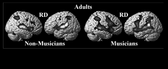 The inferior and middle frontal regions that are activated by these rhythmic and melodic discrimination tasks may play a role in the integration of auditory events into larger units, or the