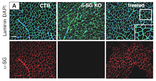Mesoangioblast: small vessels-derived stem cells Sampaolesi et al.