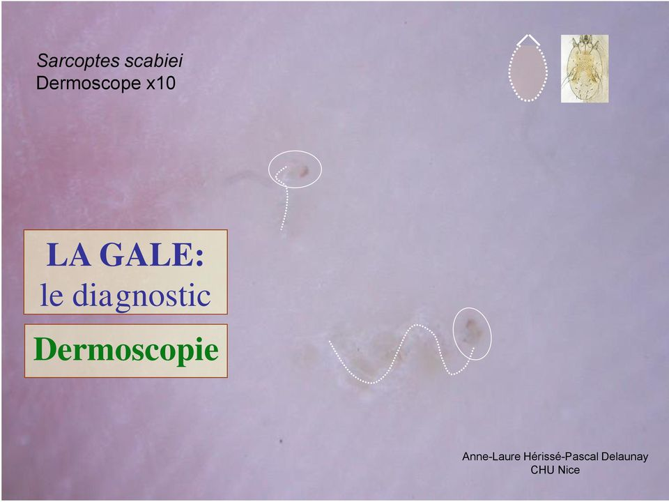 diagnostic Dermoscopie