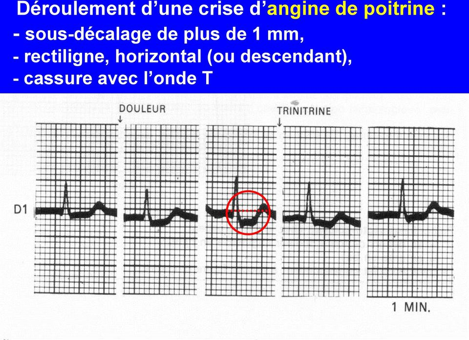 de 1 mm, - rectiligne, horizontal