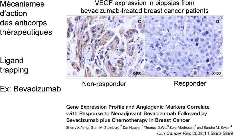 from bevacizumab-treated breast cancer
