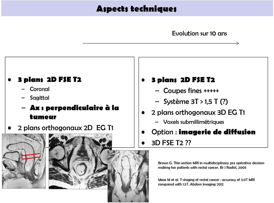 ) 2 plans orthogonaux 3D EG T1 Voxels submillimétriques Option : imagerie de diffusion 3D FSE T2?? Brown G.