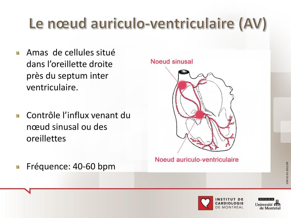 ventriculaire.