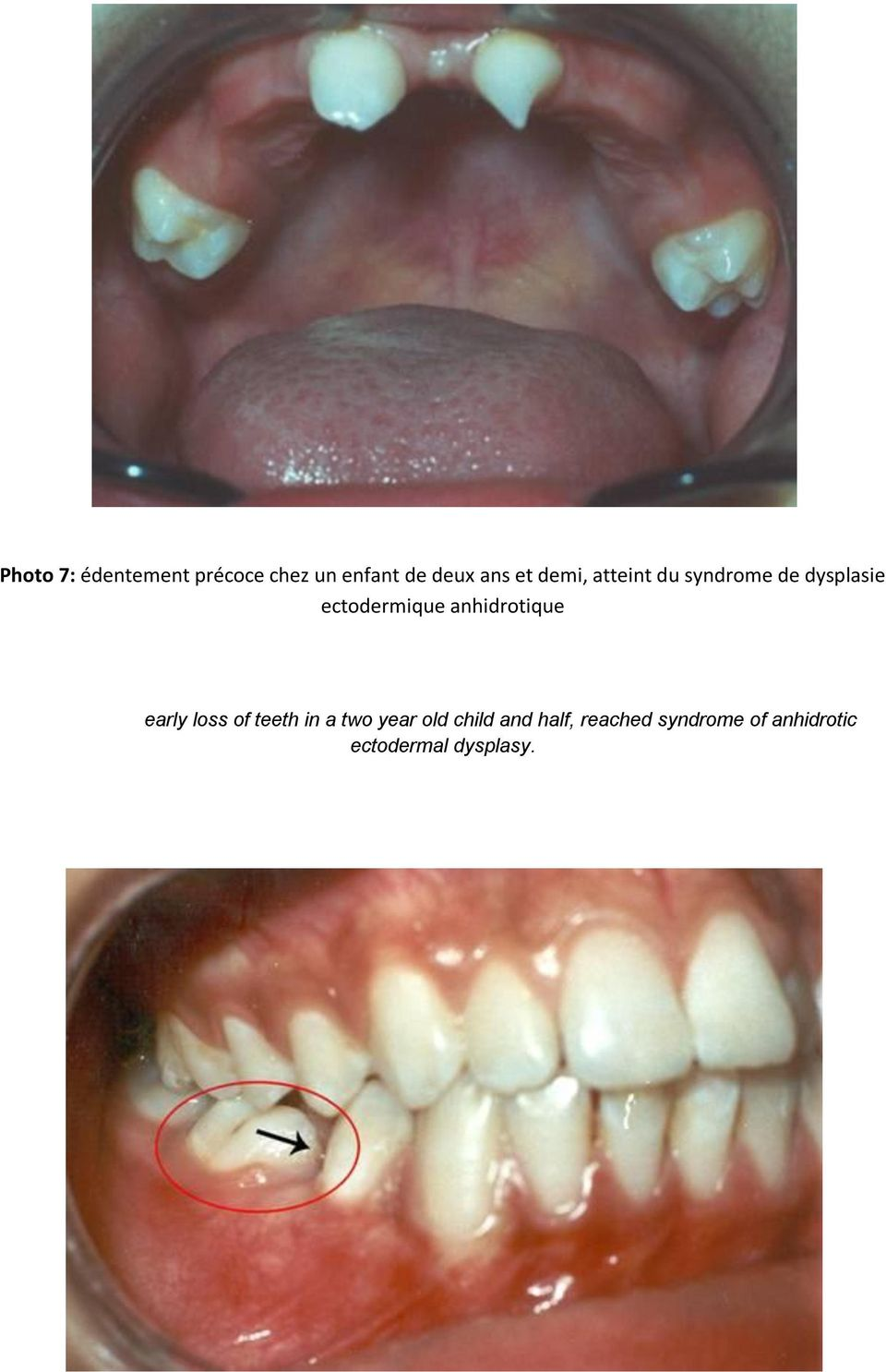 anhidrotique early loss of teeth in a two year old child