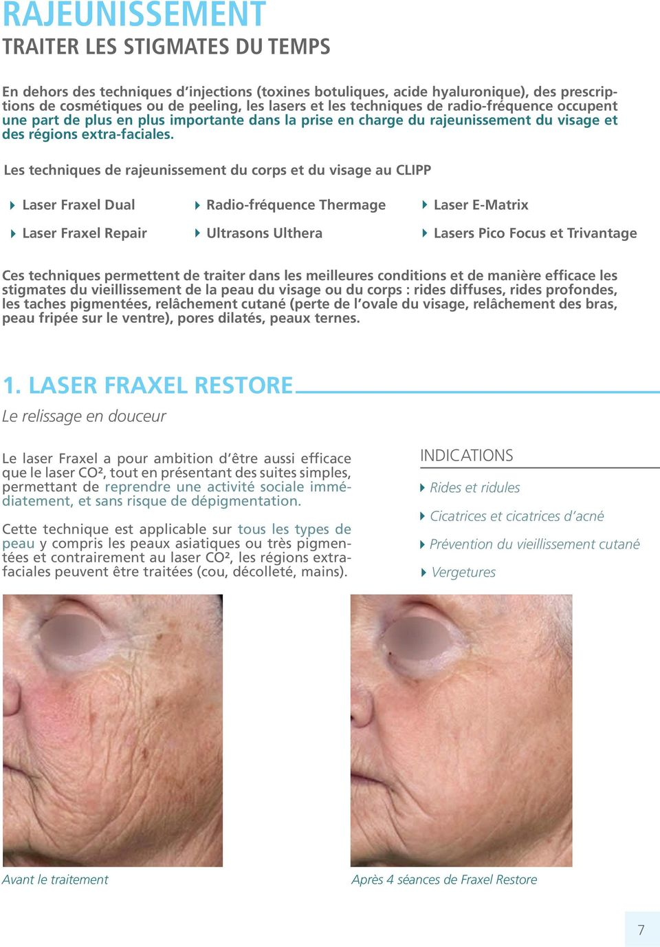 Les techniques de rajeunissement du corps et du visage au CLIPP Laser Fraxel Dual Laser Fraxel Repair Radio-fréquence Thermage Ultrasons Ulthera Laser E-Matrix Lasers Pico Focus et Trivantage Ces