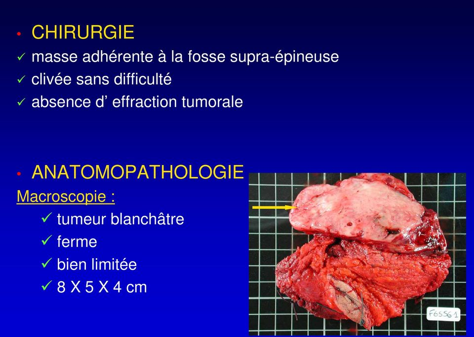 d effraction tumorale ANATOMOPATHOLOGIE