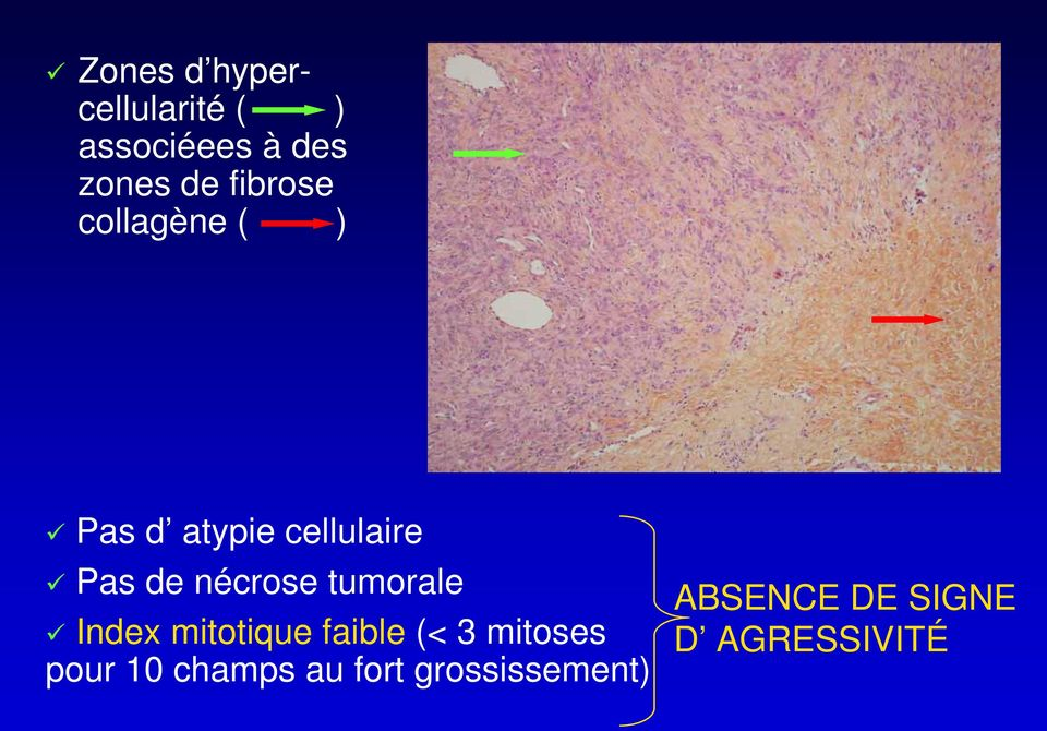 nécrose tumorale Index mitotique faible (< 3 mitoses pour