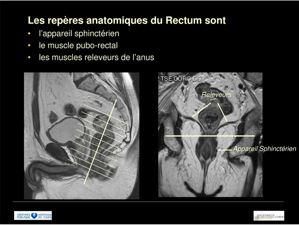 muscle pubo-rectal les muscles