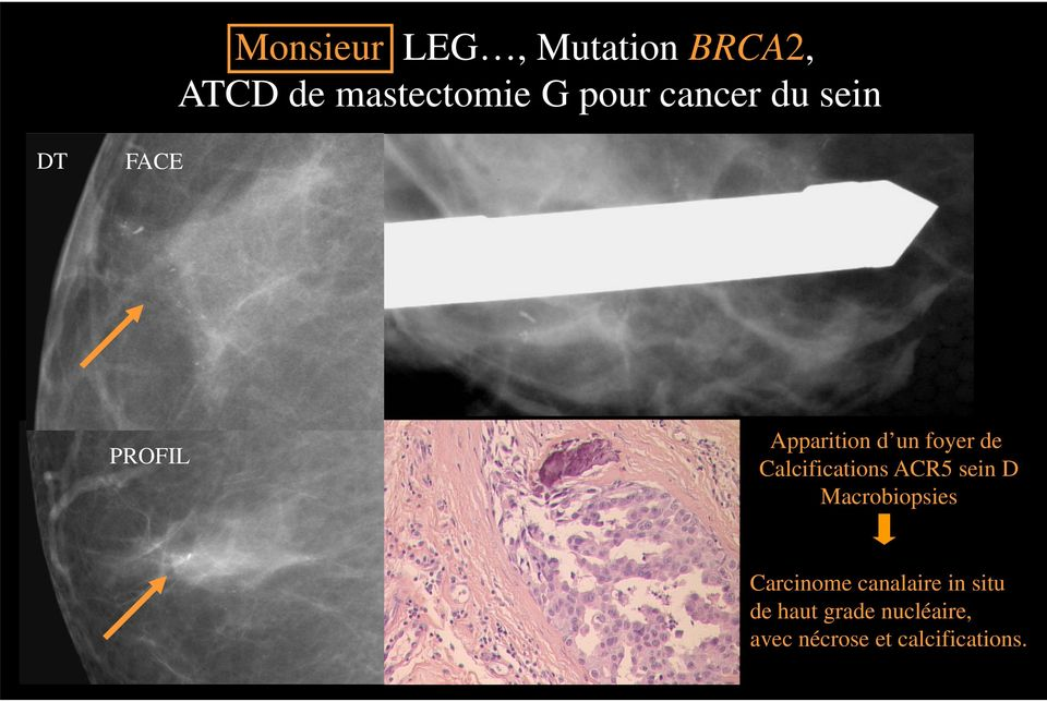 Calcifications ACR5 sein D Macrobiopsies Carcinome