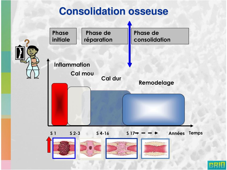 Phase de consolidation Inflammation Cal
