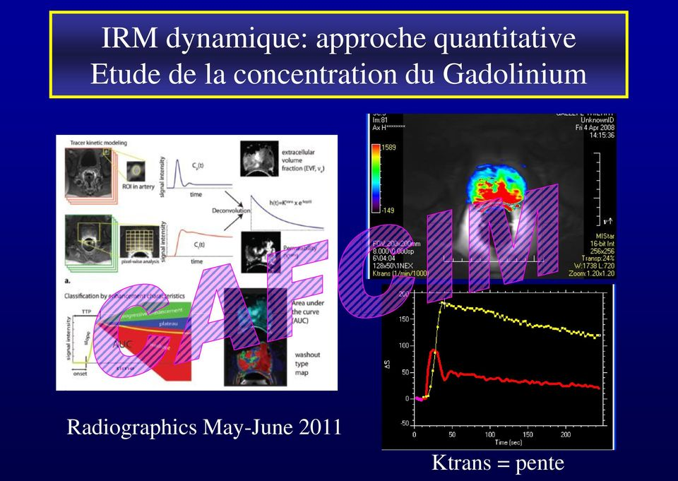concentration du Gadolinium