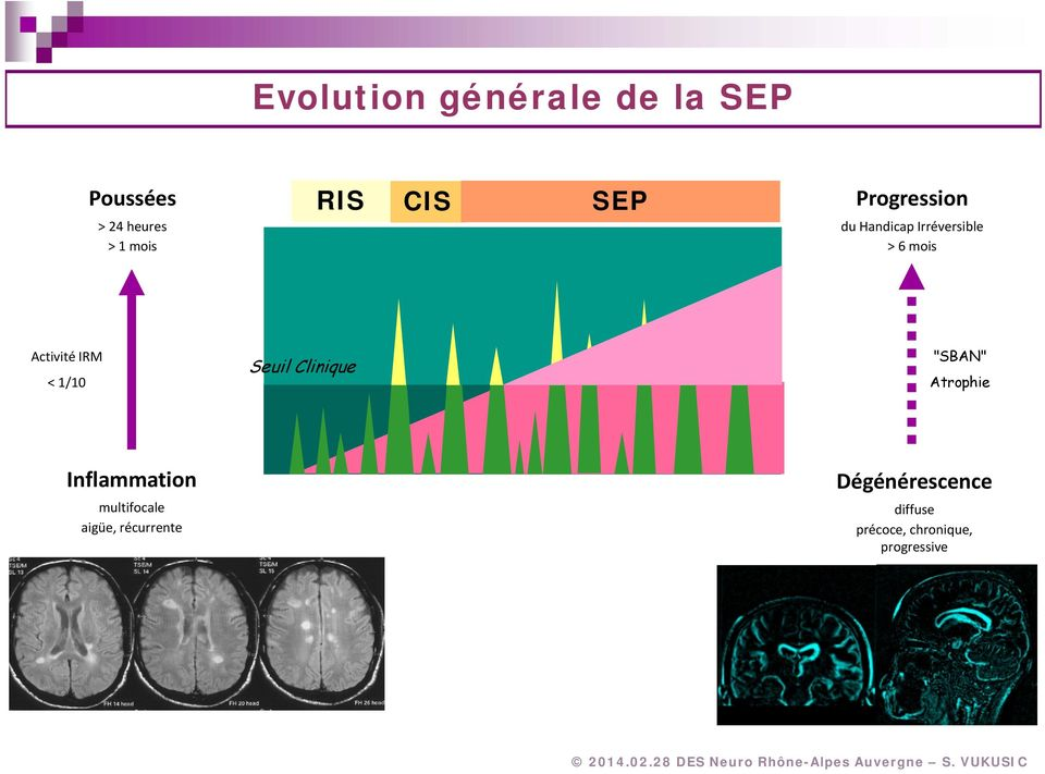 "1/10 Seuil Clinique ""SBAN"" Atrophie Inflammation multifocale"