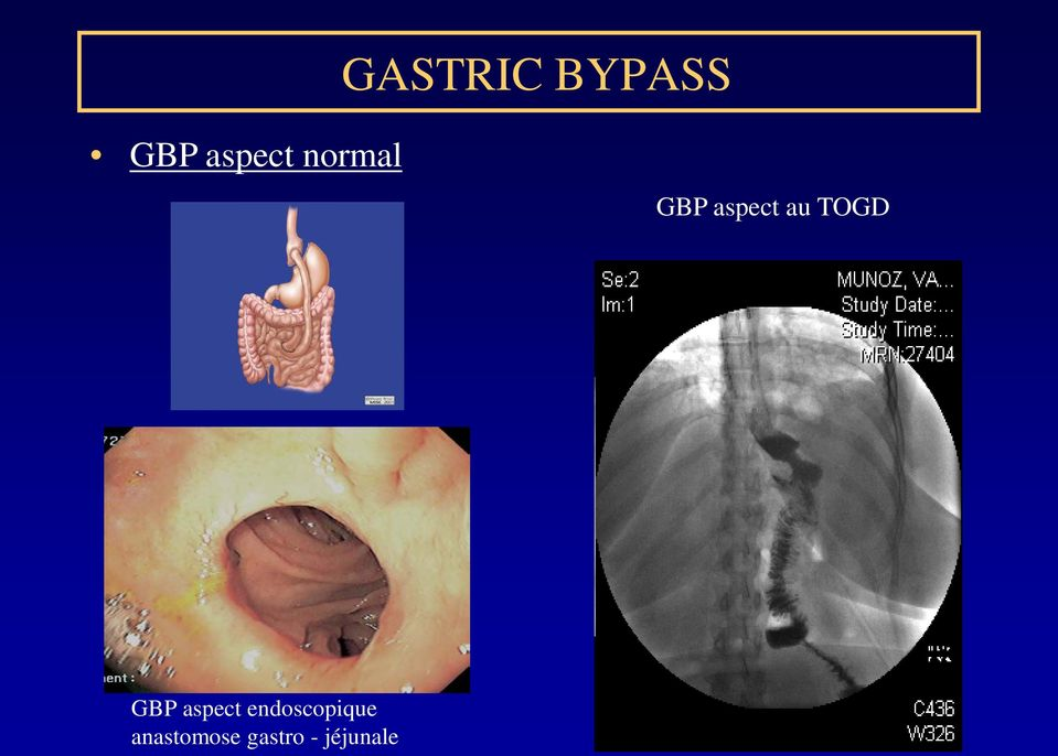 GBP aspect endoscopique