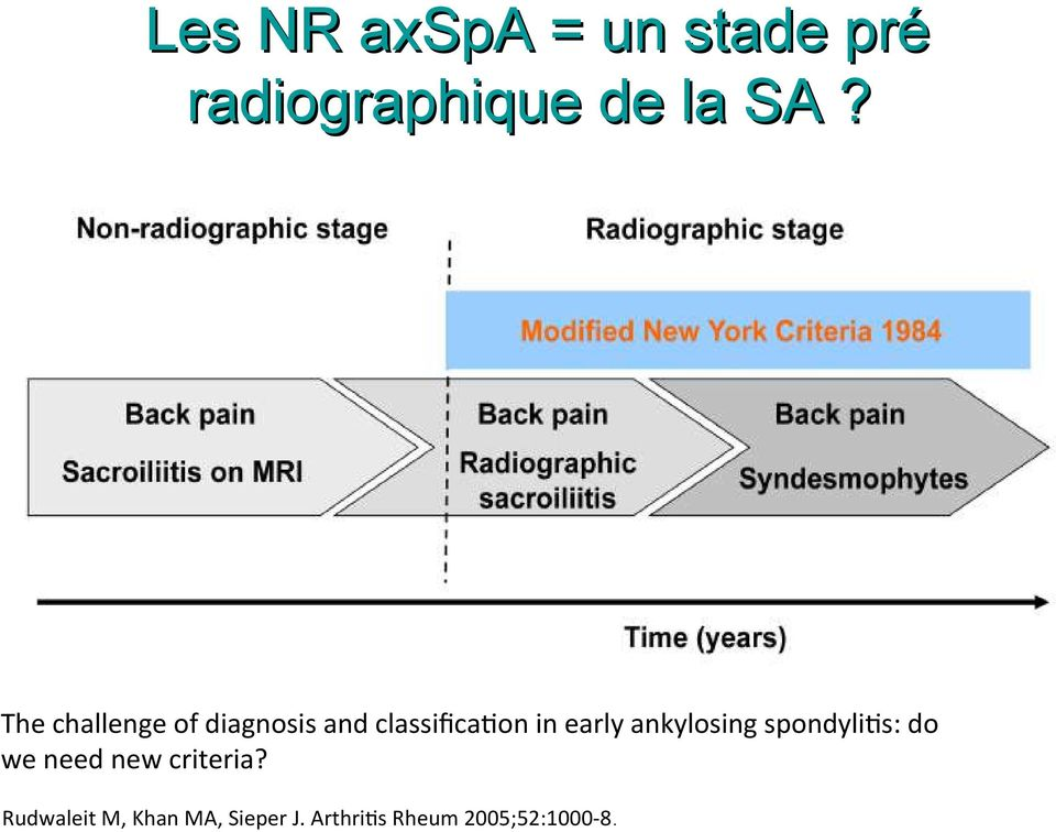 ankylosing spondylits: do we need new criteria?
