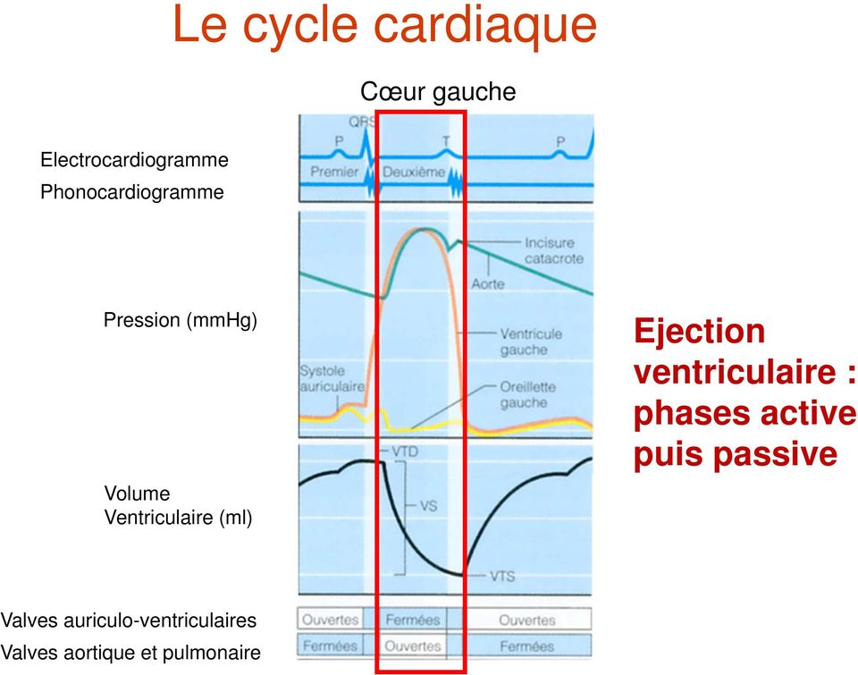 (ml) Ejection ventriculaire : phases active puis