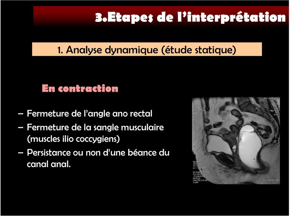 Fermeture de l angle ano rectal Fermeture de la sangle