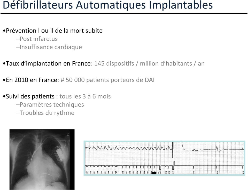 dispositifs / million d habitants / an En 2010 en France: # 50 000 patients