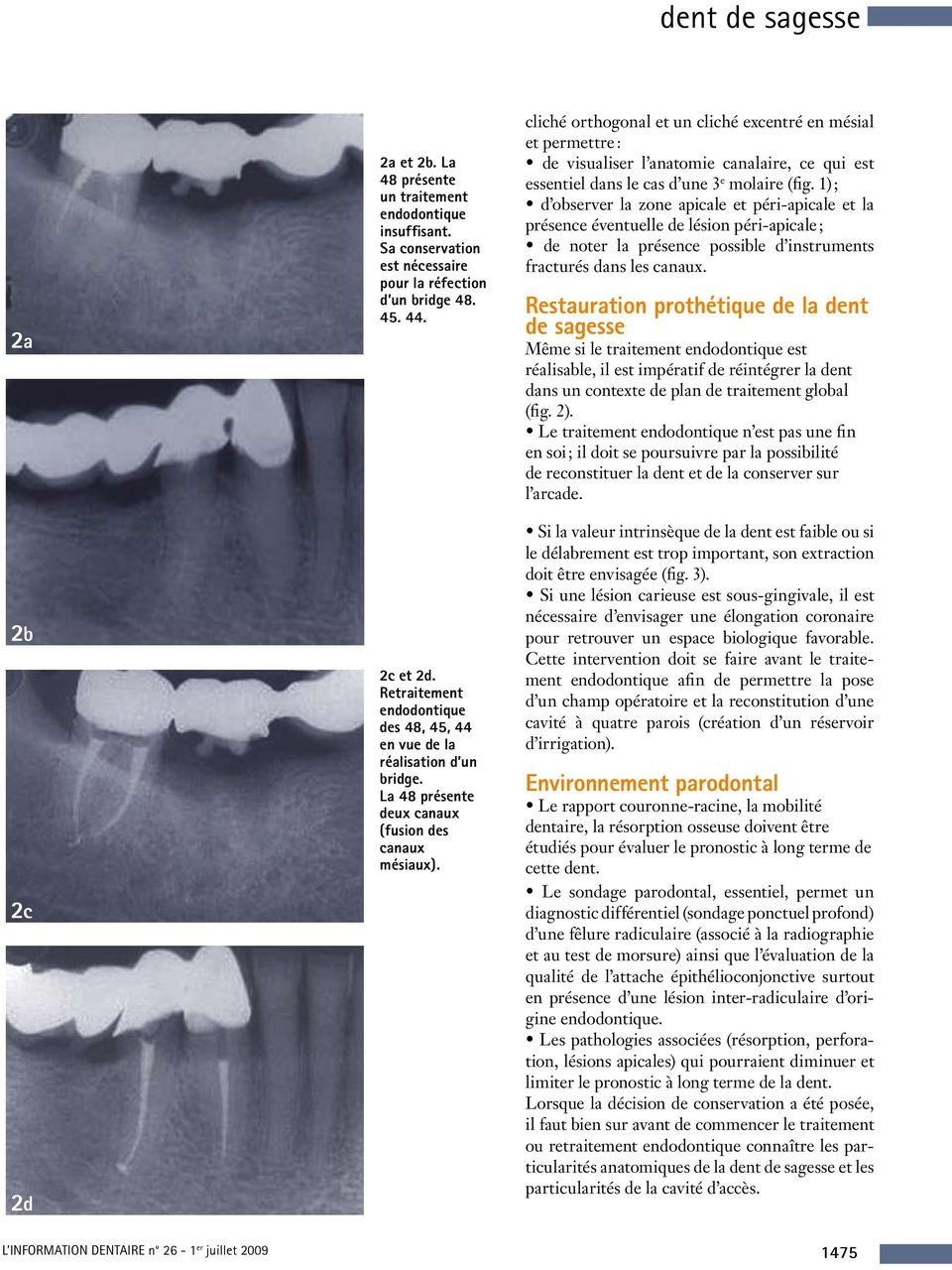 La dent de sagesse pose la question de sa. Traitement endodontique ...