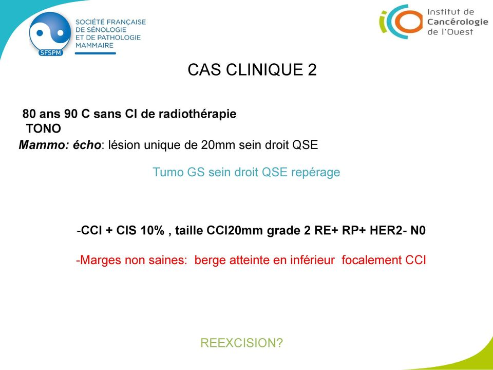 repérage -CCI + CIS 10%, taille CCI20mm grade 2 RE+ RP+ HER2- N0