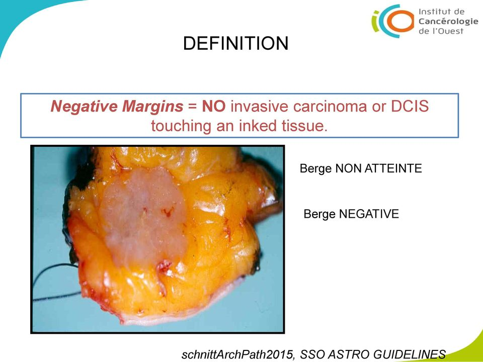 NO invasive carcinoma or DCIS touching