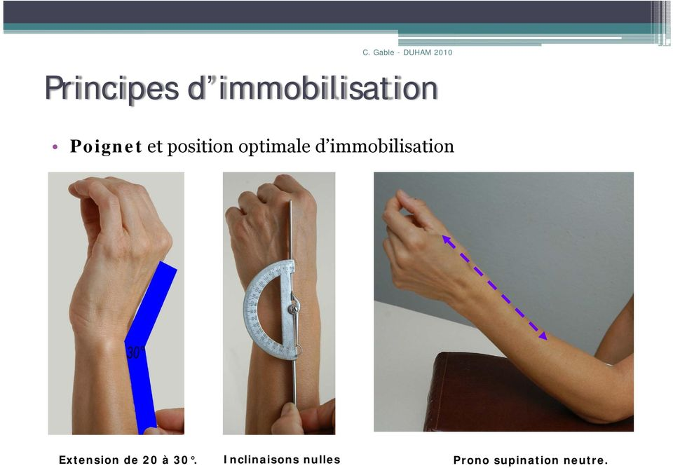 immobilisation Extension de 20 à