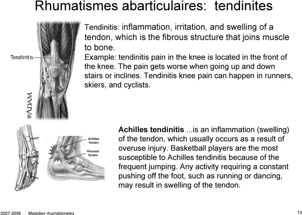 Tendinitis knee pain can happen in runners, skiers, and cyclists. Achilles tendinitis...is an inflammation (swelling) of the tendon, which usually occurs as a result of overuse injury.