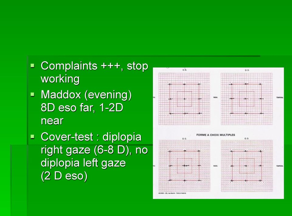near! Cover-test : diplopia right