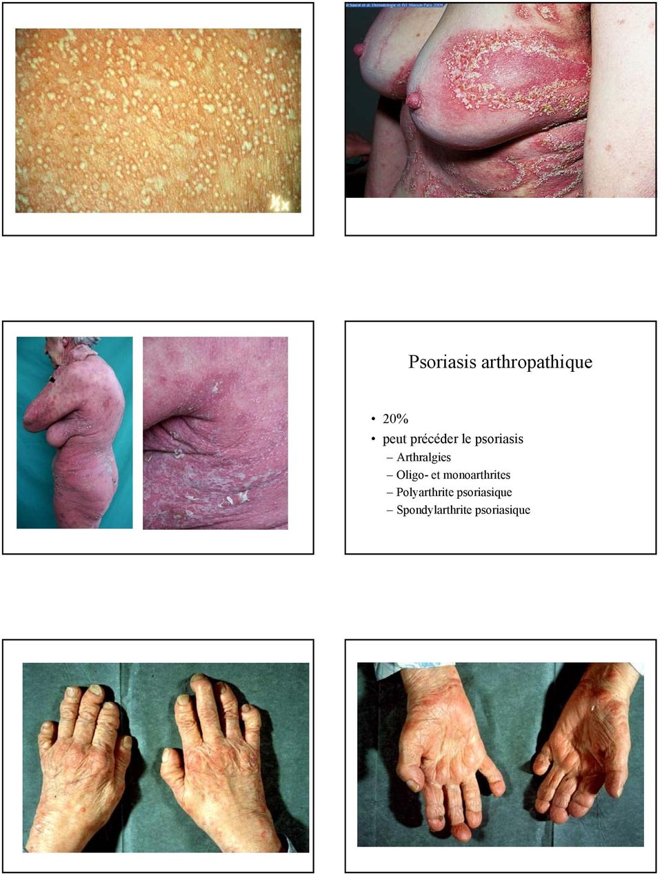 Introduction. Cours APEPPU Psoriasis. Clinique. Pathologie