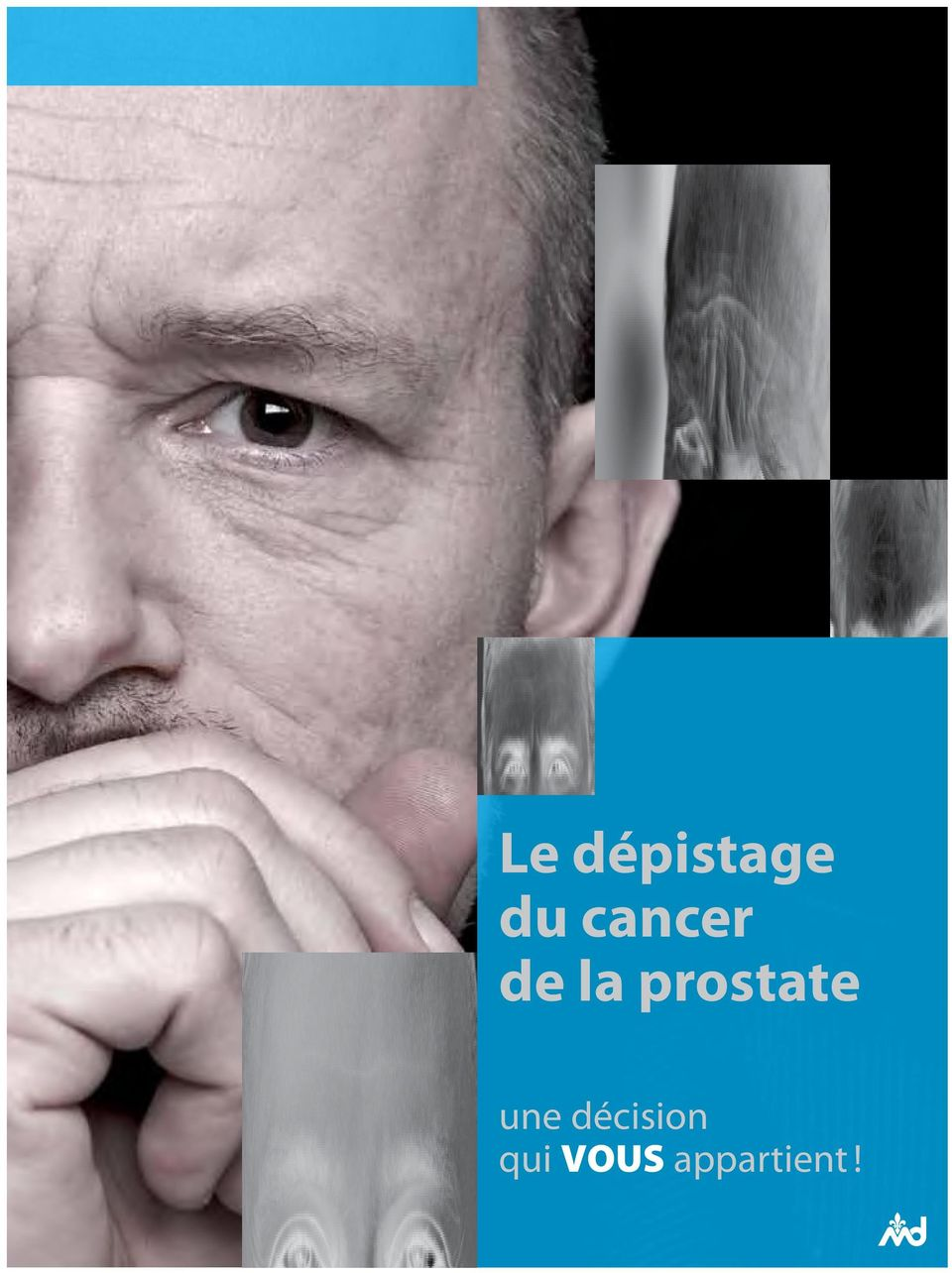 prostate une