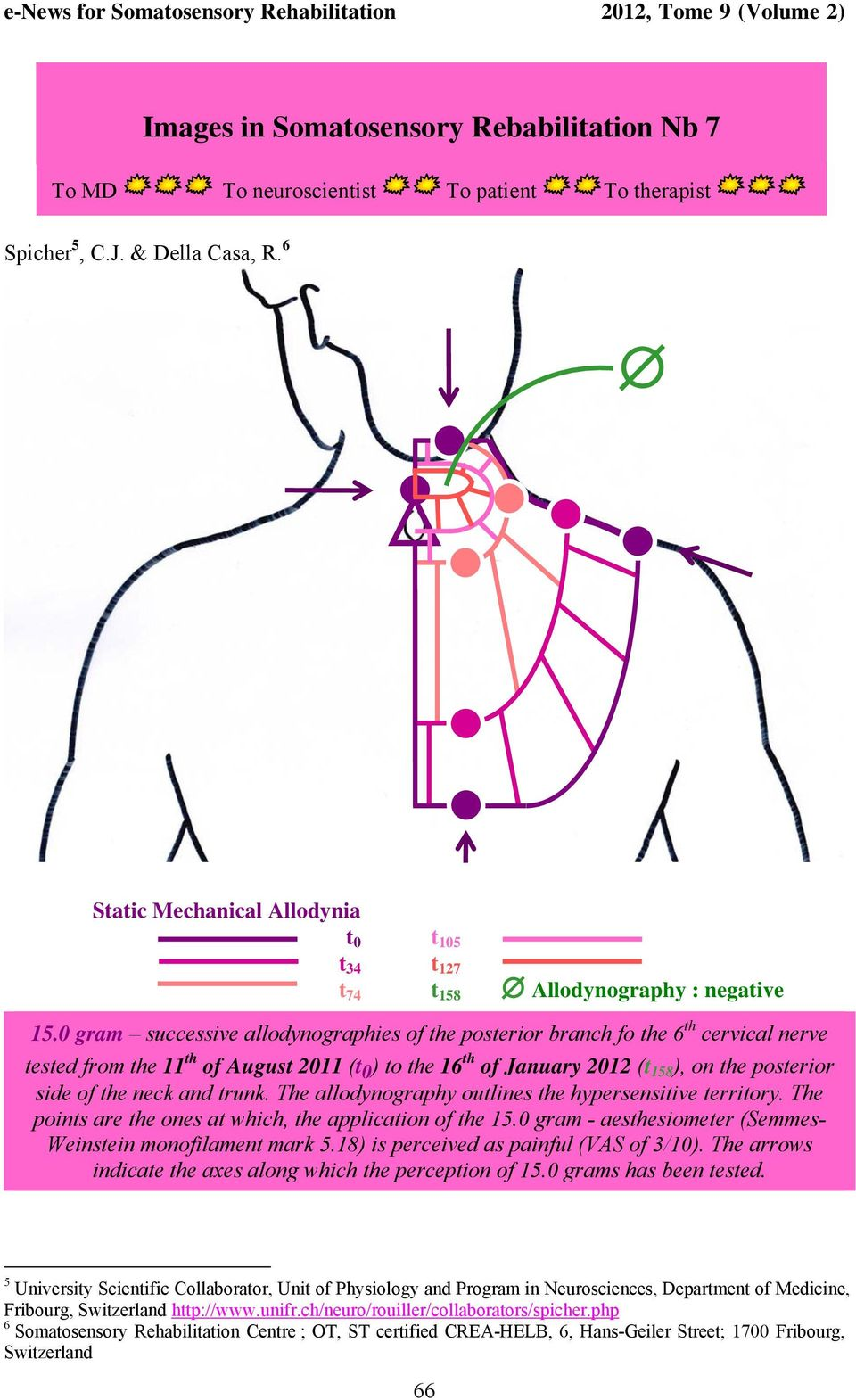 0 gram successive allodynographies of the posterior branch fo the 6 th cervical nerve tested from the 11 th of August 2011 (t 0 ) to the 16 th of January 2012 (t 158 ), on the posterior side of the