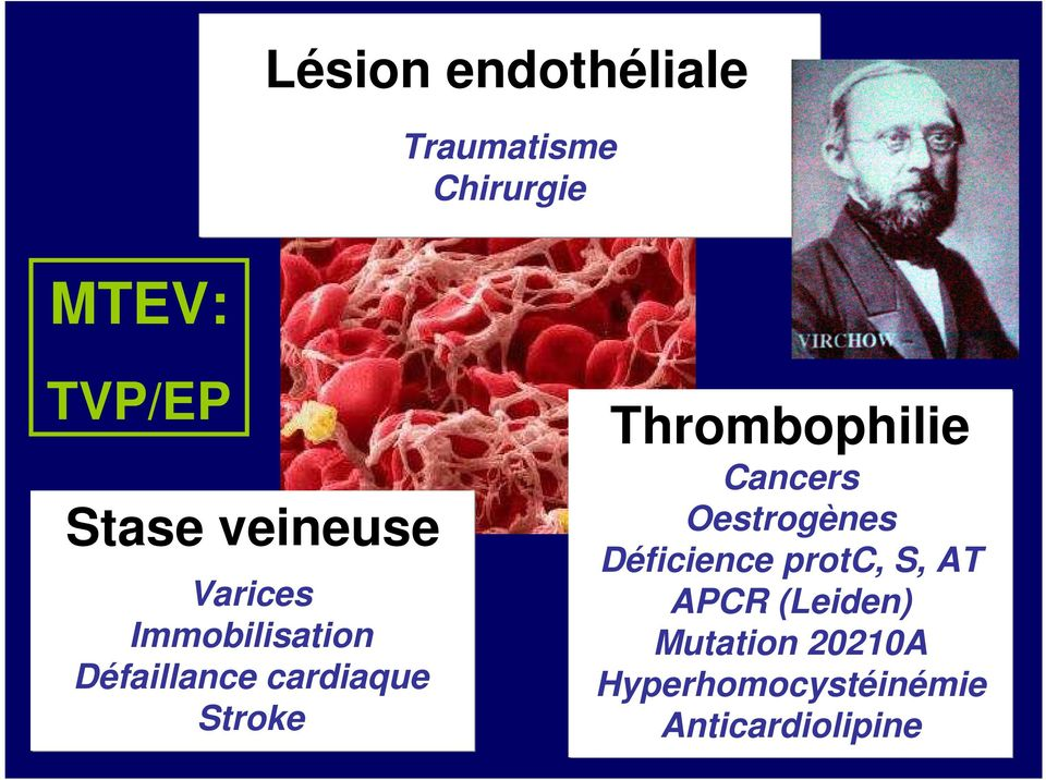 Thrombophilie Cancers Oestrogènes Déficience protc, S, AT