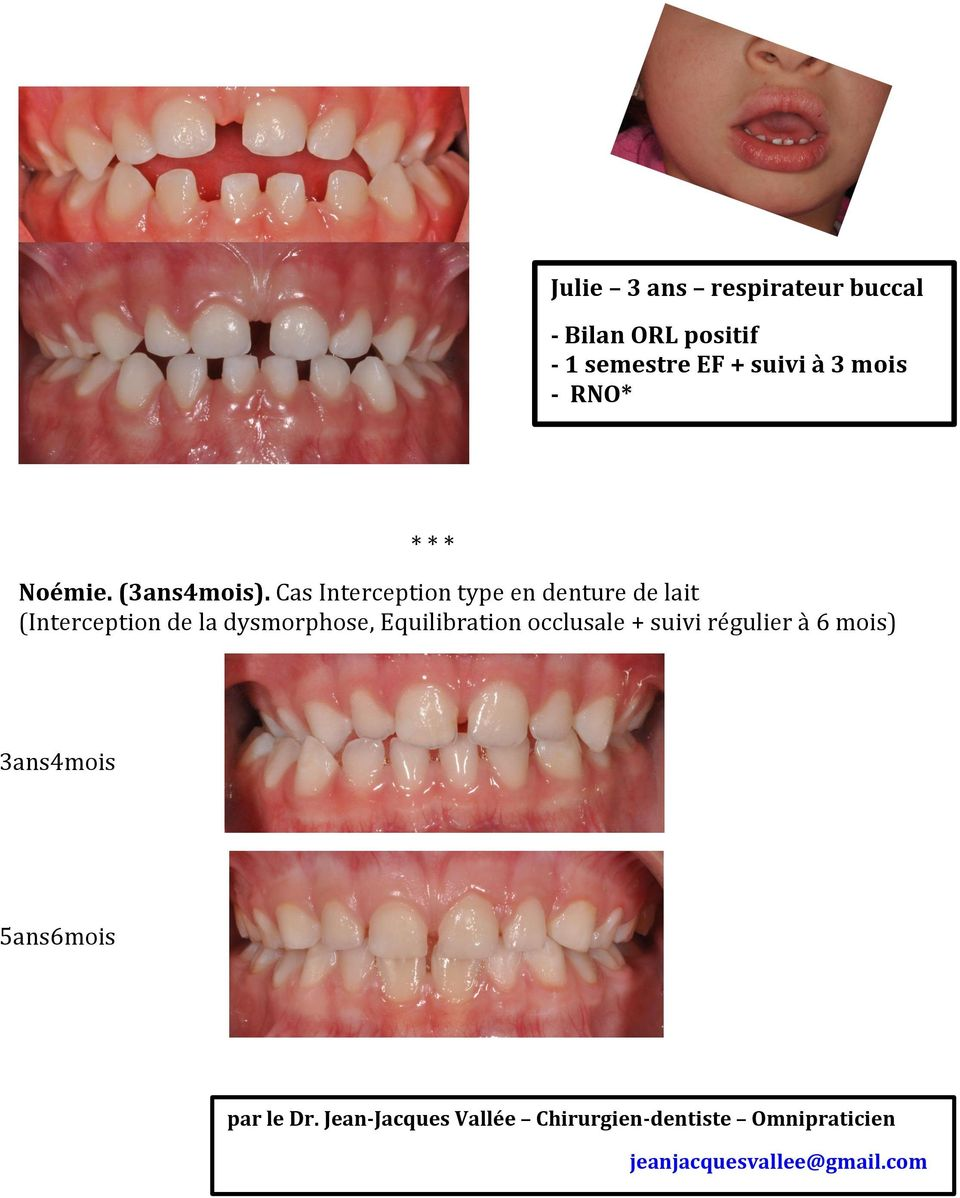 Cas Interception type en denture de lait (Interception de la dysmorphose, Equilibration