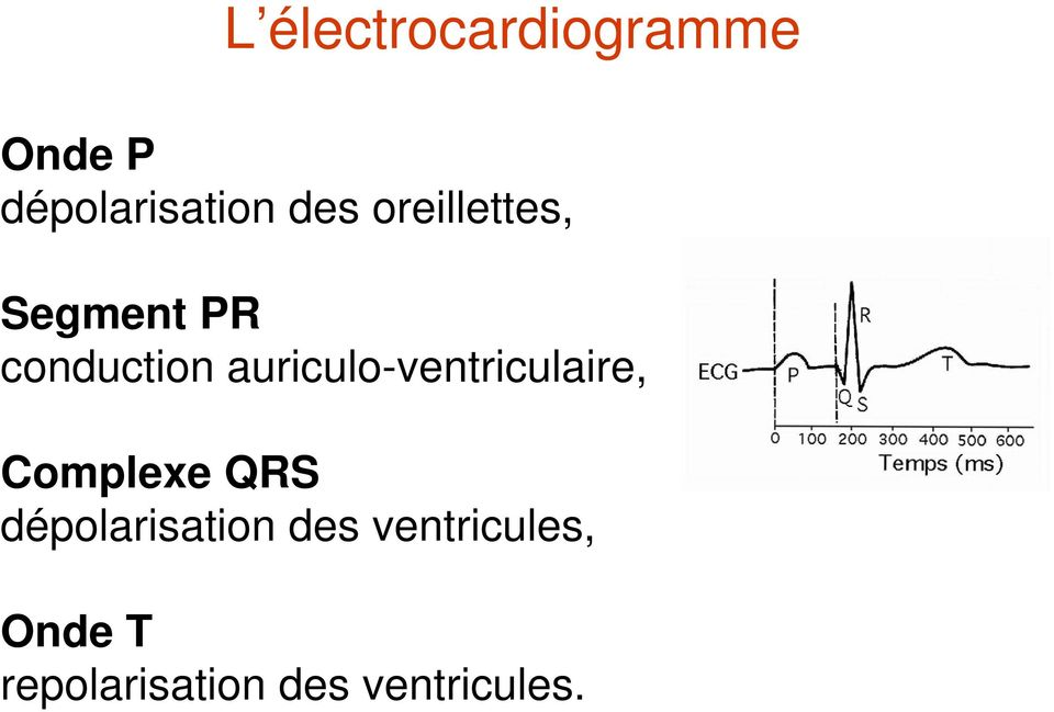 auriculo-ventriculaire, Complexe QRS