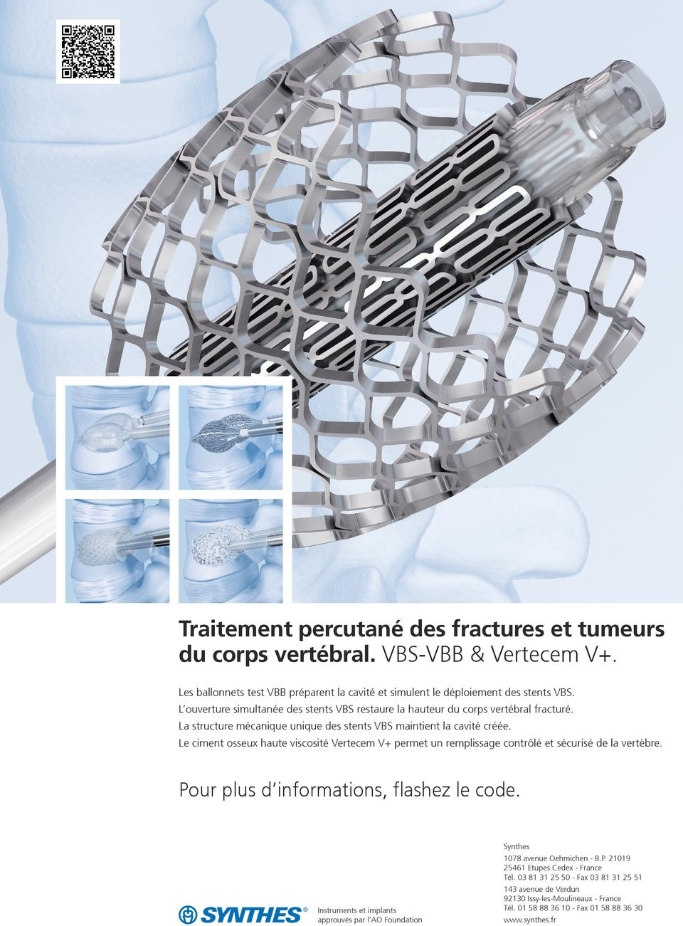 Le ciment osseux haute viscosité Vertecem V+ permet un remplissage contrôlé et sécurisé de la vertèbre. Pour plus d informations, flashez le code. Synthes 1078 avenue Oehmichen - B.P. 21019 25461 Etupes Cedex - France Tél.