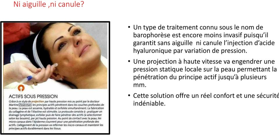 aiguille ni canule l injection d acide hyaluronique par variation de pression.