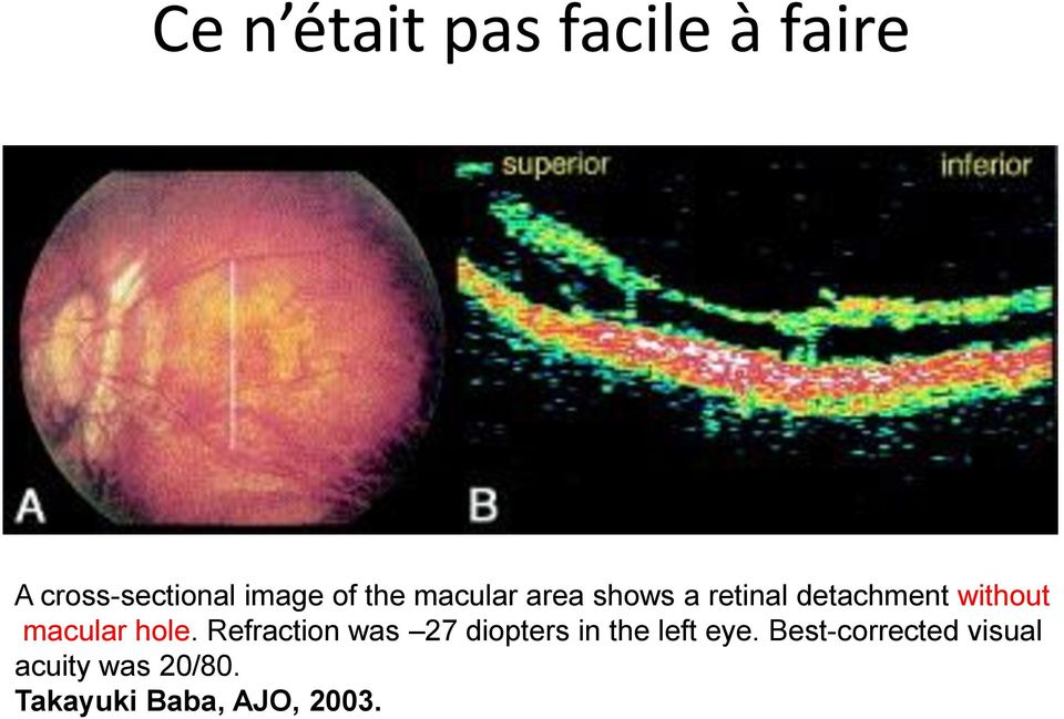 macular hole. Refraction was 27 diopters in the left eye.