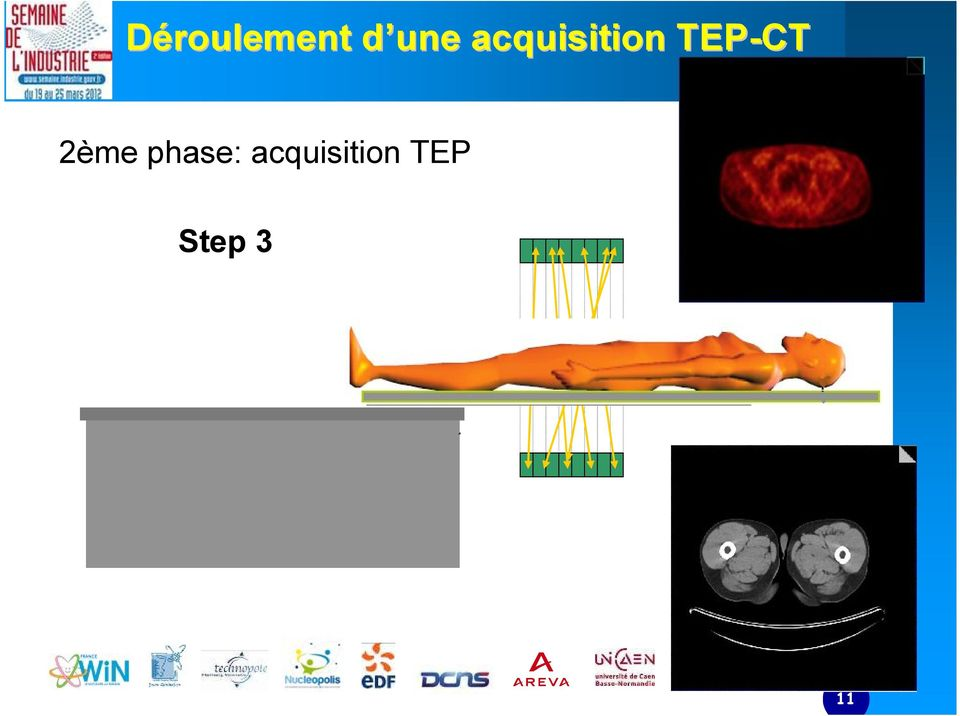 TEP-CT 2ème phase: