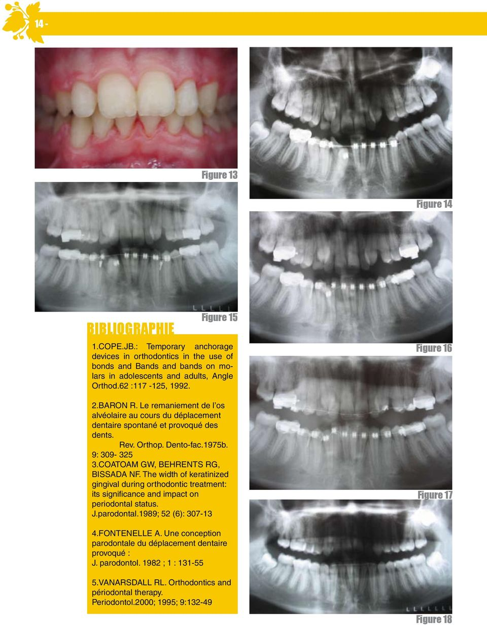 COATOAM GW, BEHRENTS RG, BISSADA NF. The width of keratinized gingival during orthodontic treatment: its significance and impact on periodontal status. J.parodontal.