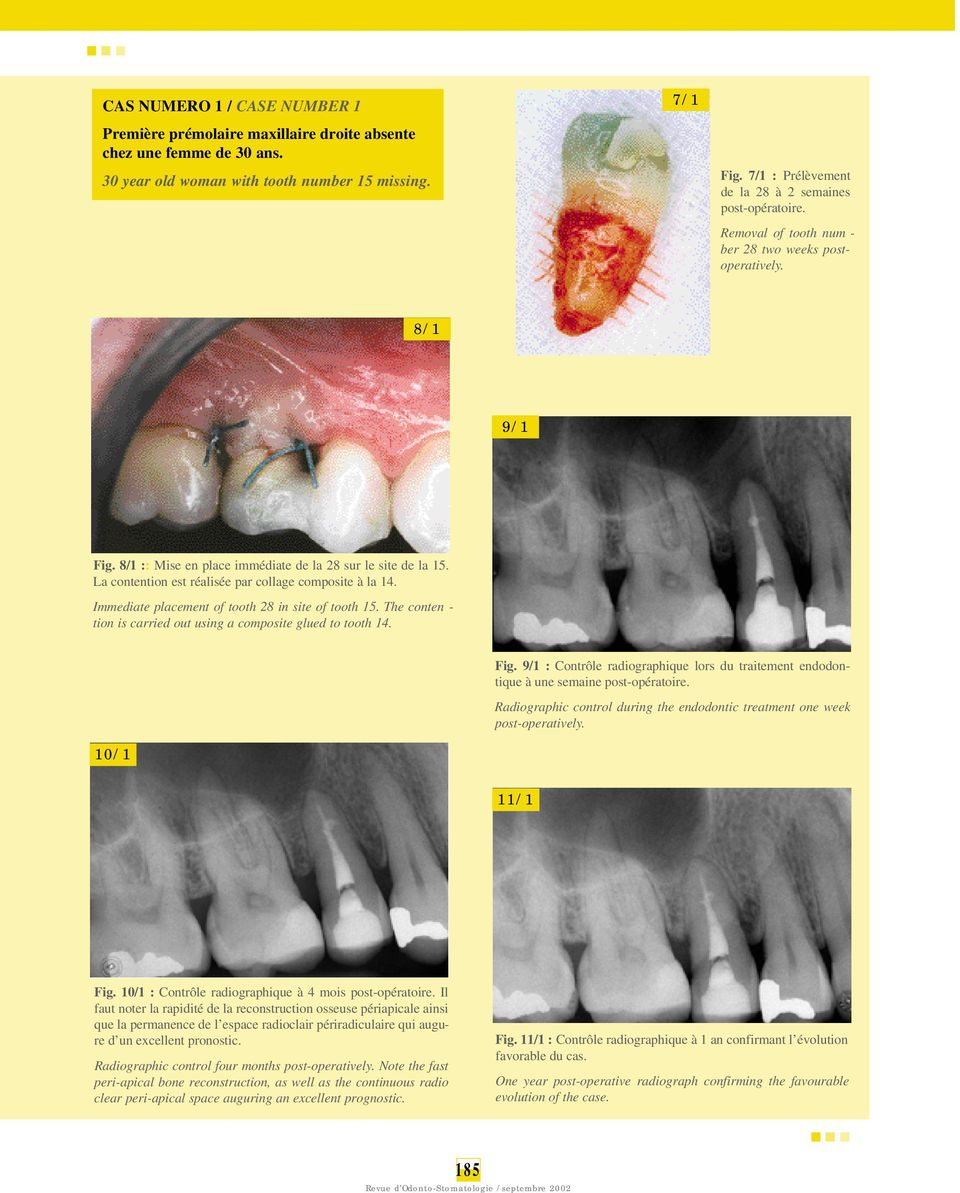 La contention est réalisée par collage composite à la 14. Immediate placement of tooth 28 in site of tooth 15. The conten - tion is carried out using a composite glued to tooth 14. Fig.