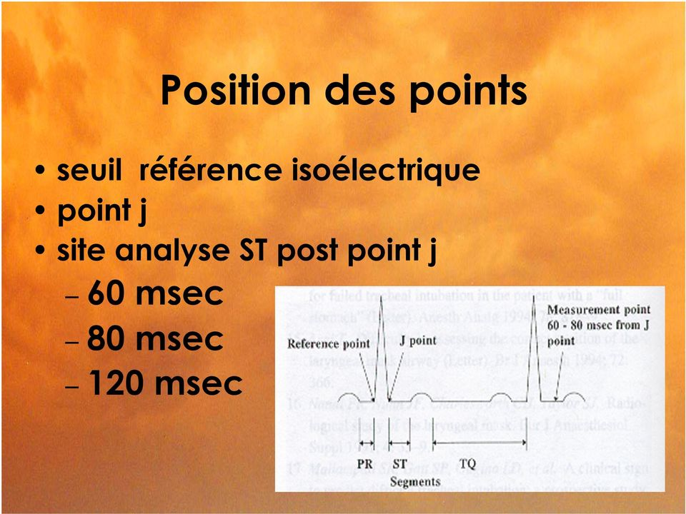 point j site analyse ST