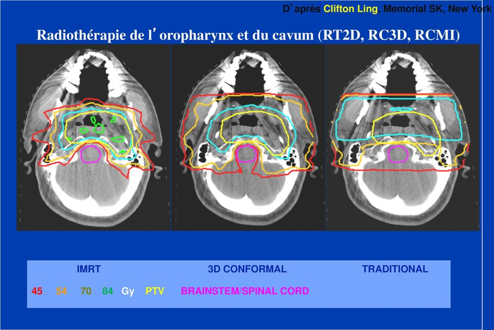 (RT2D, RC3D, RCMI) IMRT 3D CONFORMAL