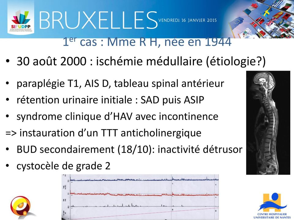 SAD puis ASIP syndrome clinique d HAV avec incontinence => instauration d un TTT