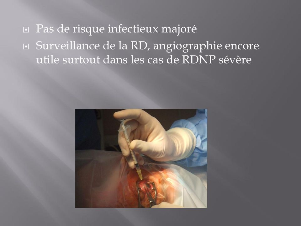 RD, angiographie encore