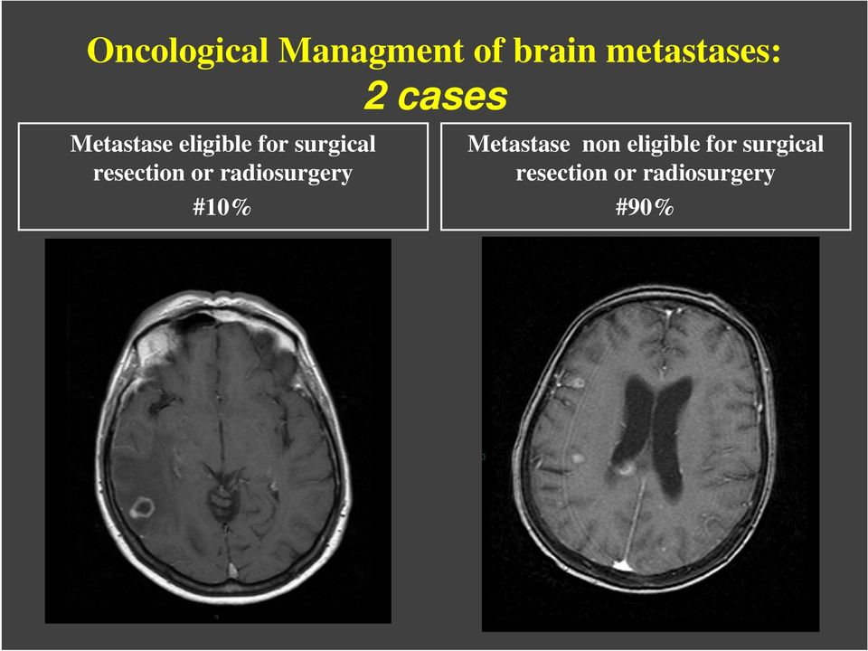 resection or radiosurgery #10% Metastase non