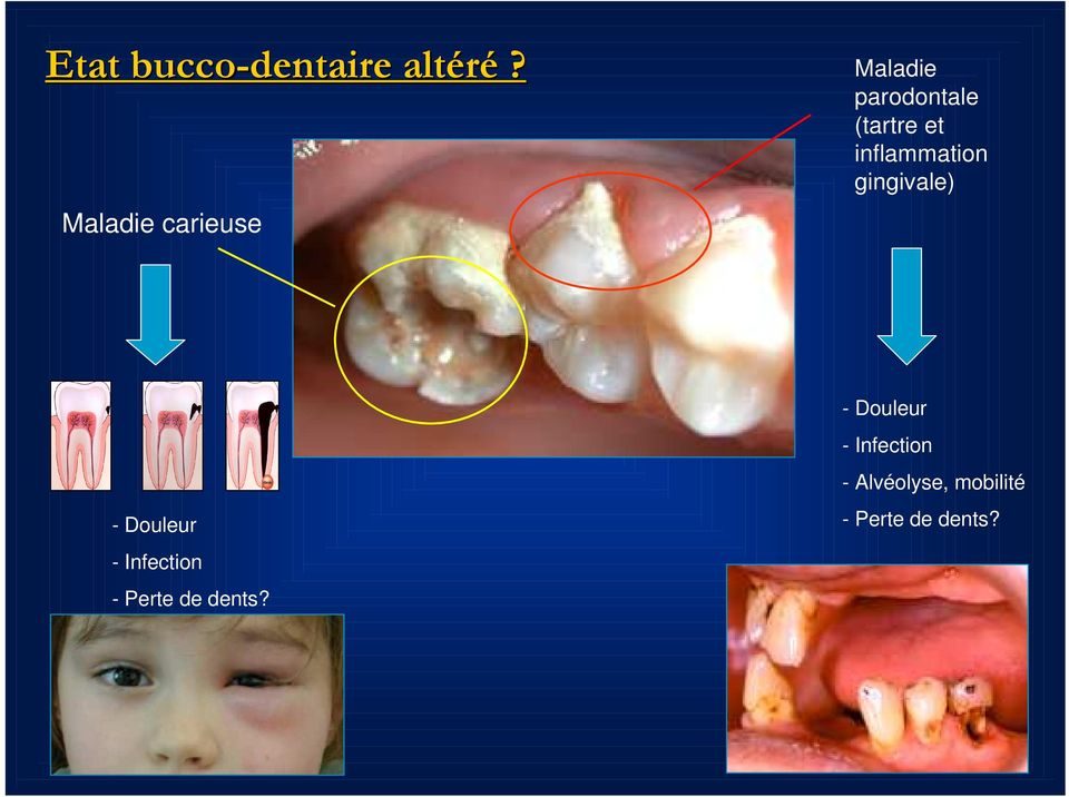 inflammation gingivale) - Douleur - Infection -