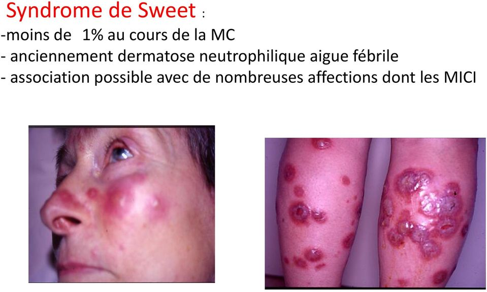 neutrophilique aigue fébrile - association