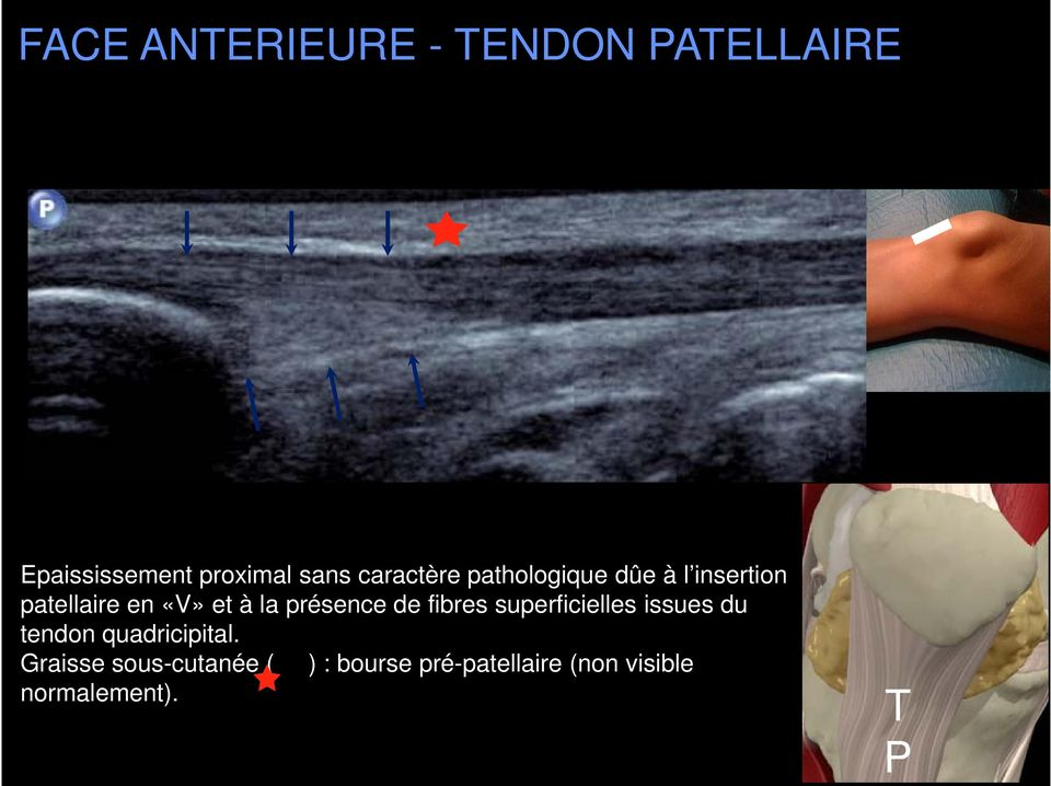 présence de fibres superficielles issues du tendon quadricipital.