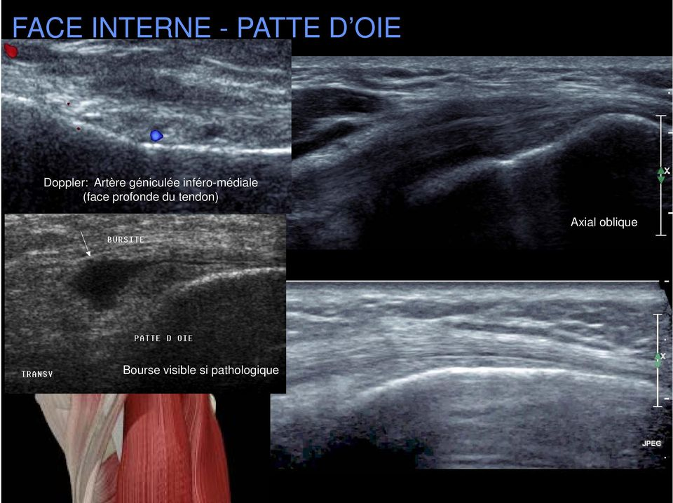(face profonde du tendon) ST Axial