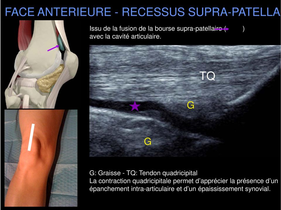 TQ G G G: Graisse - TQ: Tendon quadricipital La contraction