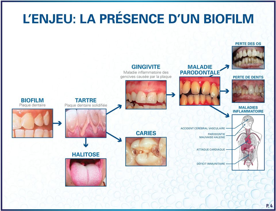Plaque dentaire solidifiée MALADIES INFLAMMATOIRE CARIES HALITOSE ACCIDENT